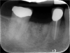 Fig 6. Periapical radiograph, single missing tooth.
