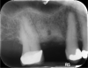 Fig 11. Site No. 3, 6 months after extraction and bone grafting completed.