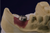 Fig 23. Custom titanium abutment in screw-cementable case.