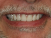Fig 10. Full smile after conversion.