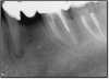Fig 4. Case that quickly would proceed to implants.