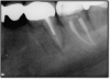 Fig 6. Successful root canal.