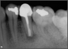 Fig 15. Postoperative radiograph.