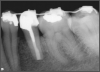 Fig 16. Radiograph after 4.5 years.