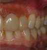 Fig 7. A floating papilla is an artificial papilla that overlaps an adjacent natural tooth.