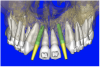 Figure 9a  Virtual implants were placed to determine the appropriate shape and type for the available space; in this case a tapered design allowed for adequate mesial-distal distance between adjacent roots.