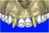 Figure 10b  By using the virtual teeth feature, (A) final implant and abutment positioning was checked, (B) the abutment projection evaluated for a cementable prosthesis, and (C) the appearance of the desired virtual restorations evaluated for emergence and esthetics.