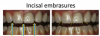 Fig 9. Evaluation of the incisal embrasures.