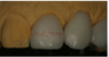 Fig. 23. The red wax line was at the same level as tooth No. 8.