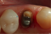 Fig 8. Better access on the palatal of this premolar was desirable to obtain a good impression of not just the margin but also 0.5 mm of the tooth and root surface apical to the margin.