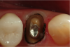 Fig 10. Double-zero retraction cord was then placed circumferentially around the entire tooth at the base of the sulcus. Number 1 cord would then be placed at the level of the margin.